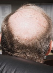 Mature businessman with bald head